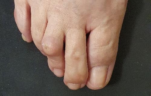 Σφυροδακτυλία - Παραμορφώσεις των μικρών δακτύλων του ποδιού
