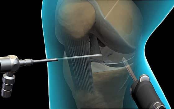 knee arthroscopy model