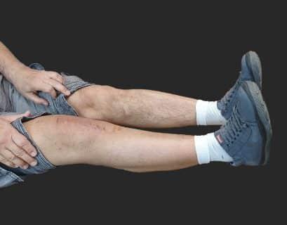 ρομποτική αρθροπλαστική γόνατος - έκταση
