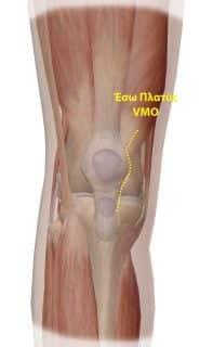 Έσω πλατύς - ελάχιστα επεμβατική αρθροπλαστική γόνατος